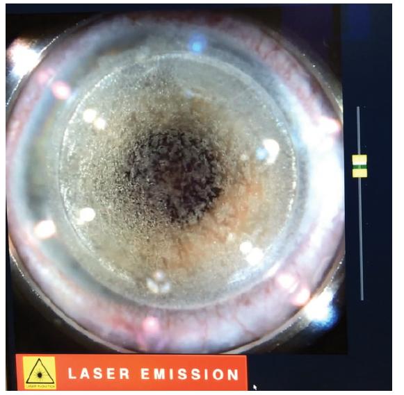 Tvorba rohovkové lamely femtosekundovým laserem LenSx® (Alcon, Fort Worth, Texas, USA)
