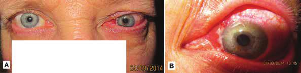Klinický obraz u toho istého pacienta v marci 2014 – progresia s tendenciou infiltrácie do očnice