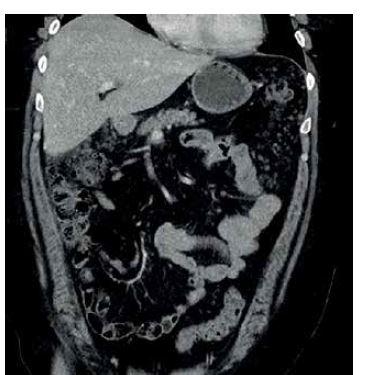 CT obraz infiltrace omenta, patrná hlavně subhepatálně a v levém parakolickém prostoru.<br> Fig. 1: CT image of infiltration of the omentum, visible in the subhepatal area and left paracolic area.
