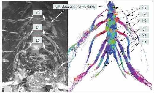 3D MR neurografie (sekvence STIR-SPACE, maximum intensity projection; MIP) – levý obrázek a MR traktografie – pravý obrázek oboustranného lumbosakrálního plexu s nálezem extralaterální hernie disku L3/4 vlevo (muž, 63 let). Na pravém obrázku lze na MR traktografii pozorovat útlum signálu kořene L3 vlevo při jeho výstupu z foramina, což odpovídá lokalizaci extralaterální hernie disku.<br> Fig. 6. 3D MR neurography (STIR-SPACE sequence, maximum intensity projection; MIP) – left picture and MR tractography – right picture of the bilateral lumbosacral plexi with left L3/4 extralateral disc herniation (male, 63 years). In the right picture, left L3 root signal attenuation can be observed on MR tractography at its exit from the foramen, which corresponds to the localization of the extralateral disc herniation.