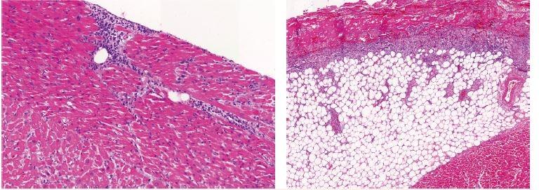 Kazuistika 2 – histologický obraz leukemické infiltrace orgánů