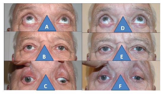 67-letý muž s poúrazovou parézou dolního přímého svalu vpravo: zvýšená elevace vpravo (A), hypertropie vpravo (B), nulová deprese vpravo (C), normalizace elevace po operaci (D), paralelní postavení očí po operaci (E), pouze náznak deprese po operaci vpravo (F)