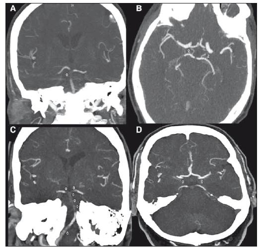 """Pacient s Basilar Artery on Computed Tomography Angiography skóre = 9. (A) přítomna distální okluze arteria basilaris; (B) jsou přítomny obě arteria communicans posterior. Ve snímku označené """"2"""" (2 body). Pacient s Basilar Artery on Computed Tomography Angiography skóre = 0. (C) rozsáhlá okluze arteria basilaris; (D) nepřítomnost obou arteria communicans posterior [1].<br> Fig. 2. Patient with Basilar Artery on Computed Tomography Angiography score = 9. (A) distal occlusion of basilar artery; (B) both posterior communicating arteries are present. Marked """"2"""" in the image (2 points). Patient with Basilar Artery on Computed Tomography Angiography score = 0. (C) extensive occlusion of basilar artery; (D) absence of both posterior communicating arteries [1]."""