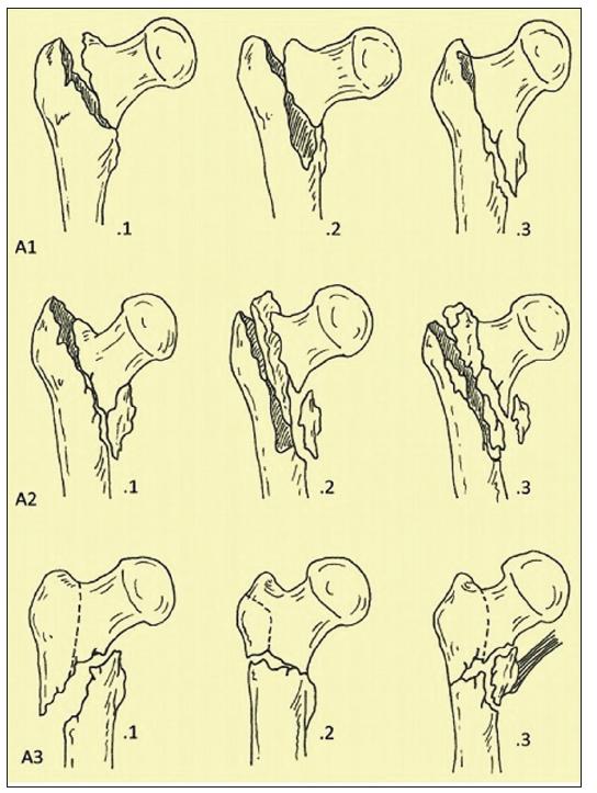AO klasifikace trochanterických zlomenin
