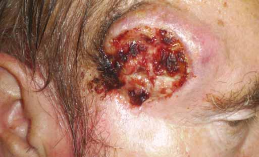 Recidiva exulcerovaného spinaliomu v pravé spánkové krajině.