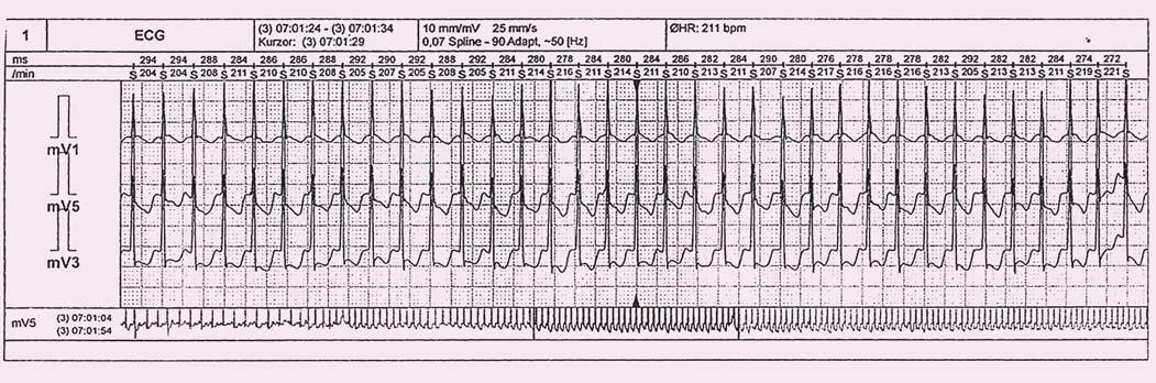 Holterova EKG monitorace se záchytem paroxysmu typické AVNRT.