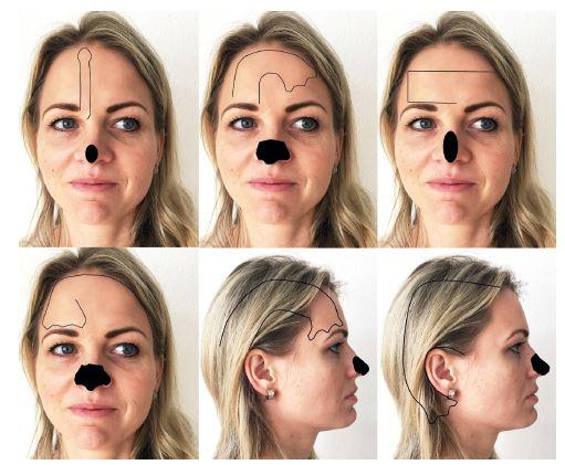 Různé typy čelních laloků: A) paramediánní čelní lalok, B) Gilliesův up and down čelní lalok, C) horizontální lalok, D) Conversův skalpační lalok, E) Newův srpkovitý lalok, F) Washio lalok.