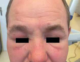 Granulomatózní rozacea
