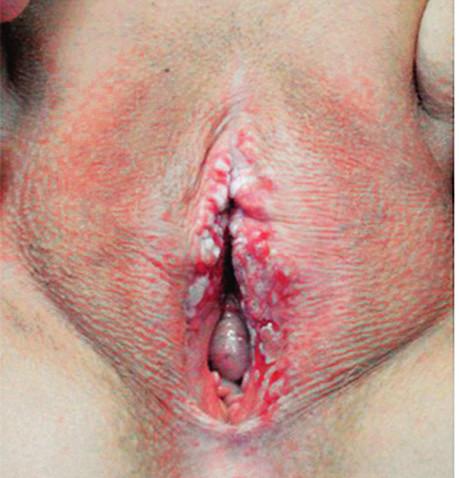 Carcinoma spinocellulare (foto autor) je maligní epitelový nádor. Léze se manifestuje jako zatvrdlé plaky nebo vředy na vulvě s možnými květákovitými exofyty. Související symptomy zahrnují bolest, svědění a přerušované krvácení.