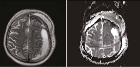 MR zobrazení subdurálního a subkutánního empyému po operaci mozkového nádoru – závažná komplikace jako následek nekvalitně provedené rekonstrukce tvrdé pleny (A – T2 vážený obraz, B – zdánlivý koeficient difuze, ADC)<br> Fig. 2: MR imaging of subdural and subcutaneous empyema after cranial surgery – severe complication as a result of insufficient dural reconstruction. (A – T2 weighted image, B – apparent diffusion coefficient, ADC)