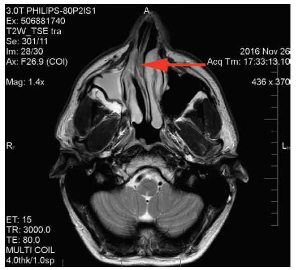 MR vyšetření: deviace nosní přepážky doprava