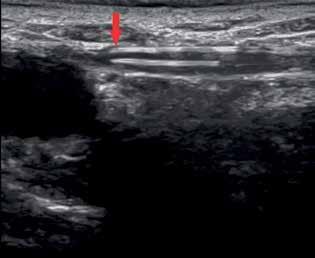 Do žíly je nejprve zavedeno speciální světlovodné laserové vlákno venózním katétrem pomocí Seldingerovy techniky. Červená šipka označuje konec vlákna, který je pod sonografickou kontrolou zaváděn do správné pozice, tj. 1−2 cm pod safénofemorální junkci<br> Fig. 1: A special laser fiber is introduced into the vein by a venous catheter using Seldinger's technique. The red arrow indicates the tip of the fiber that is placed under the sonographic control in an appropriate position, 1−2 cm below the sapheno-femoral junction.