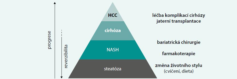 Schéma 3. Základní léčebné možnosti při NAFLD/NASH dle stupně jaterního postižení