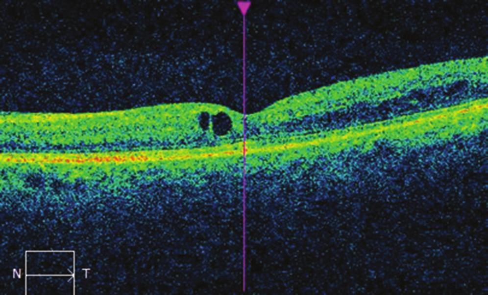 Nález na OCT na levém oku po léčbě mikropulzním laserem: pokles makulárního edému, CRT 284 μm.