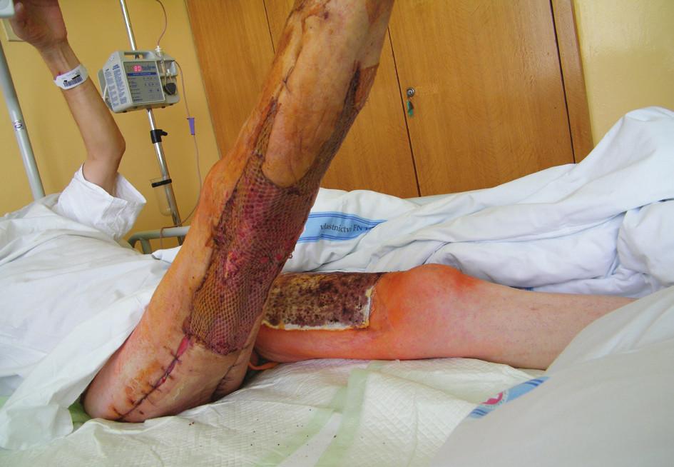 14. den po transplantaci – všechny štěpy přihojeny (18. 7. 2014)<br> Fig. 3: 14 days after grafting – all grafts healed in