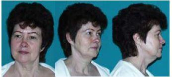 Obr. 4 Pacientka ve věku 60 let: čelní, šikmý a boční pohled