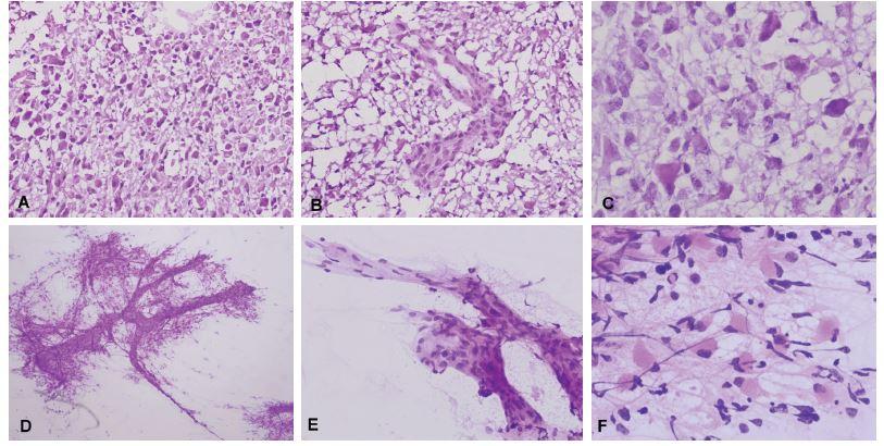 (A) Biopsia tumoru temporálne vpravo u 59-ročného muža. Radiologicky suspekný high-grade glióm. V zmrazených rezoch bol zachytený hypercelulárny tumor tvorený atypickými bunkami s objemnou cytoplazmou. (B) Mikrovaskulárna proliferácia. (C) Detail cytologických atypií v zmrazenom reze, prítomné boli početné mitózy. (D) V náterovej cytológii bolo možné pozorovať abnormálne cievy (mikrovaskulárna proliferácia), ku ktorým boli gliálnymi výbežkami pripojené nádorové bunky. (E) Detail mikrovaskulárnej proliferácie. (F) Atypické bunky s gemistocytickou morfológiou na fibrilárnom pozadí. Peroperačná diagnóza: high-grade glióm – glioblastóm. Definitívna diagnóza: Glioblastóm, Grade IV.