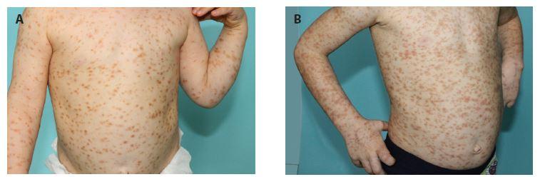 Čtyřletý chlapec s projevy od čtyř měsíců věku<br> a) projevy na trupu ve 2 letech,<br> b) ve 4 letech věku<br> Mediátorové příznaky: v anamnéze 1krát anafylaktický šok po poštípání hmyzem, jiné mediátorové příznaky neudává, tryptáza 24 nm/l, bez organomegalie, pravidelně sledován na dětské kožní ambulanci, vyšetření u hematologa bez suspekce na systémové postižení, biopsie kostní dřeně neindikována, patrná progrese kožních projevů v průběhu 2 let.