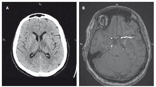 A – Kontrolní CT mozku 7. den od komplikace s novou neexpandující hypodenzitou v oblasti levého talamu v průměru cca 20 mm odpovídající subakutní ischemii. B – Kontrolní MRA za 2 měsíce po intervenci s plnou obliterací aneuryzmatu.<br> Fig. 2. A – Control brain CT on the 7th day from a complication with a new non-expanding hypodensity in the left thalamic area, approximately 20 mm in diameter, corresponding with subacute ischaemia. B – Control MRA 2 months after intervention with full aneurysm obliteration.