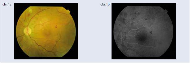 Klinické parametre a štandardná zobrazovacia vyšetrovacia metóda – fluoresceínová angiografia – sú stále základom diagnostiky diabetickej retinopatie. Obr. 1a | Závažná neproliferatívna diabetická retinopatia Obr. 1b | Fluoresceínová angiografia závažnej neproliferatívnej diabetickej retinopatie, artério-venózna fáza. Archív autorky