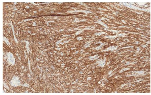 GIST pozitivně silně reaguje s protilátkou CD117<br> Fig. 2. GIST reacts positively with CD117 antibodies