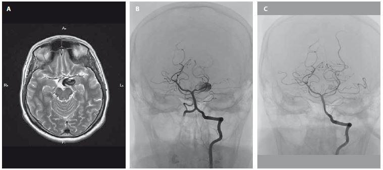 Zčásti trombózované aneuryzma velikosti 23 × 16 × 11 mm v blízkosti úseku P1 arteria cerebri posterior vlevo před ošetřením (A – MR, B – DSA). C – kontrolní DSA aneuryzmatu po úspěšném zavedení flow-diverteru.<br> Fig. 1. Partially thrombosed aneurysm (size 23 × 16 × 11 mm) near the P1 section of the cerebral posterior artery before treatment (A – MRI, B – DSA). C – control DSA of aneurysm after successful endovascular treatment with a flow-diverter.