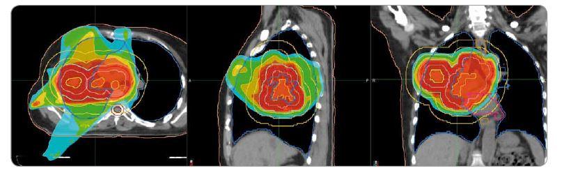 Plán radioterapie na oblast plic v kazuistice č. 1. Předepsaná dávka 40 Gy/16 frakcí. Ozařovací mód TomoDirect, šířka pole 2,5 cm. Kontury: okrová – obrys těla, tmavě růžová – srdce, modrá – plíce, béžová – jícen, hnědá – mícha, světle hnědá – mícha s lemem 5 mm, žlutá – gross target volume, lososová – clinical target volume, červená – planning target volume. Izodózy: červená – 100–107 % předepsané dávky, oranžová – 95 % předepsané dávky, tyrkysová – 50 % dávky.