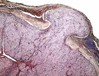 Multifokálně zastižena transkapsulární invaze. Barveno hematoxylinem eozinem (zvětšení 40x).