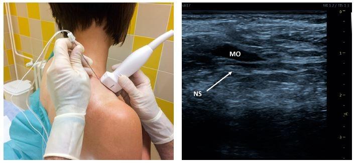 Obr. 3, 4 Blokáda n. suprascapularis – přední přístup. Poloha pacienta, sondy a jehly