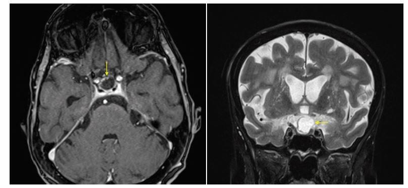 Obr. 3 a,b Magnetická rezonancia: A) Axiálny rez s hyposignálnou cystickou štruktúrou v regióne hypofýzy (T1 váženie), postkontrastne sa sýti len periféria cystického tumoru s miernym pravostranným parasellárnym šírením a so suprasellárnou extenziou, označená šípkou. B) V koronárnom reze (T2 váženie) s hyperintenzívnym signálom v mieste cysty, označená šípkou.