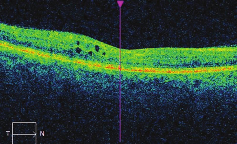 Nález na OCT na pravém oku po ošetření centrální krajiny mikropulzním laserem: pokles okulárního edému, CRT 266 μm.