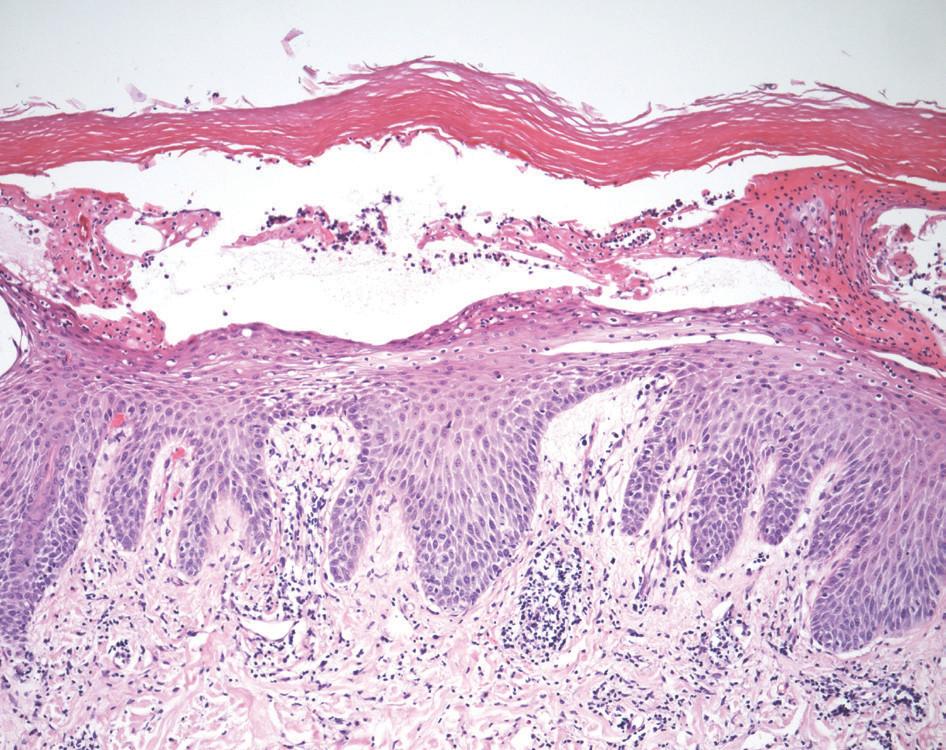 Obr. 2a. Hematoxylin eozin zvětšeno 10krát Obraz vezikulární až pustulózní dermatitidy mykotické etiologie.