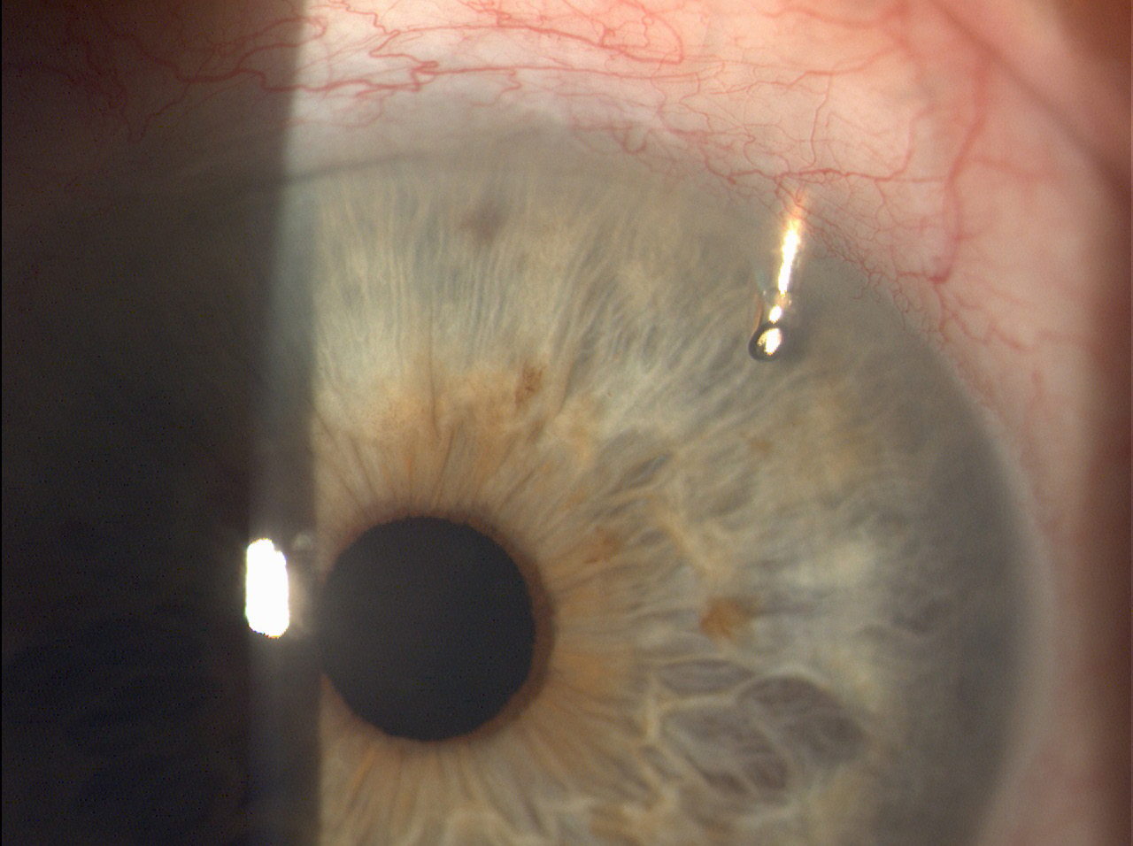 EX-PRESS implant located in the upper outer quadrant of the