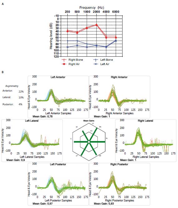 (A) Audiogram pacienta před vestibulární neurektomií ukazující střední až středně těžkou percepční poruchu sluchu na pravé straně a neužitečný sluch vlevo. (B) Výsledky vHIT ukazující fyziologickou odpověď při stimulaci všech šesti semicirkulárních kanálků, a tedy neporušenou funkci vestibulárního nervu oboustranně, u pacienta před vestibulární neurektomií.<br> Fig. 1. (A) Audiogram of the patient before vestibular neurectomy shows moderate to moderately severe sensorineural hearing loss on the right side and useless hearing on the left. (B) vHIT results show normal response upon stimulation of all six semicircular canals, which means preserved vestibular nerve function on both sides before vestibular neurectomy.
