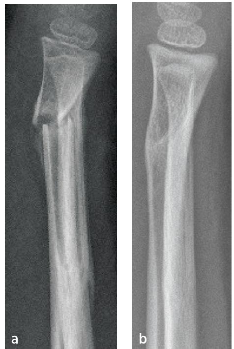 Dívka 5 let, zlomenina distální metafýzy radia; a) po sejmutí sádrové fixace zhojena v dorzální osové úchylce; b) po 6 měsících remodelace metafýzy do téměř osového postavení.<br> Fig. 1. Girl 5-year-old, fracture of the distal radial metaphysis; a) after plaster cast removing healing in dorsal axial deflection; b) after six month almost anatomical configuration due to bone remodeling.