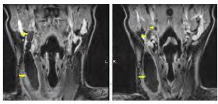 Obrázek 1b Magnetická rezonance s cystickou rezistencí vpravo na krku s píštělí směřující k pravé patrové tonzile laterální krční píštěl (šipky)