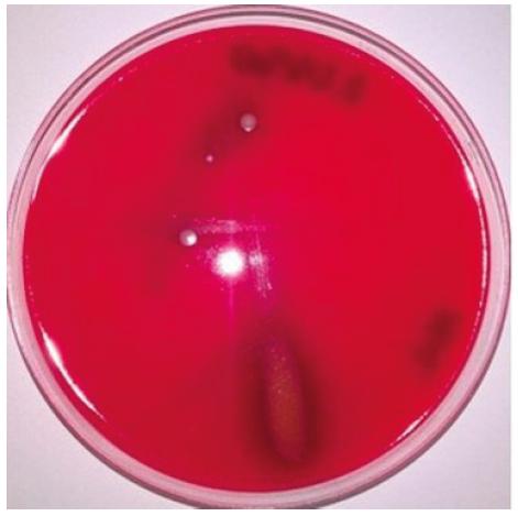 Vzorek slizu plžů exponovaný UV zářením po dobu 60 minut po 24hodinové kultivaci na Columbia krevním agaru Viditelná viridace – částečná hemolýza beraních erytrocytů v místě očkovací čáry, kde nebyl detekován žádný nárůst bakterii, což svědčí o biologickém účinku látek přítomných ve slizu.<br> Figure 1. Slime sample exposed to UV radiation for 60 minutes after 24 hours of culture on Columbia blood agar Visible alpha haemolysis – partial haemolysis of sheep erythrocytes along the inoculation line where no bacterial growth was detected, which indicates biological activity of the substances present in snail slime.