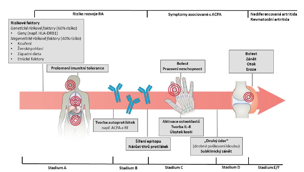 Rozvoj revmatoidní artritidy jako několikastupňový proces. Preklinické stadium A) asymptomatických geneticky predisponovaných jedinců, B) asymptomatických nositelů ACPA, C) symptomatických nositelů ACPA s artralgiemi a D) jedinců se subklinickým zánětem. Jako klinicky definované onemocnění lze považovat stadium u pacientů E) s nediferencovanou artritidou, kteří ještě nesplňují kritéria pro RA, a F) s plně vyjádřenou RA splňující klasifikační kritéria. Upraveno podle [4, 5].