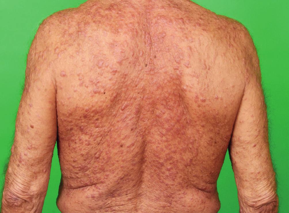 Postižení kůže zad při indeterminate-cell histiocytosis