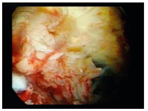 Peroperační hysteroskopický nález