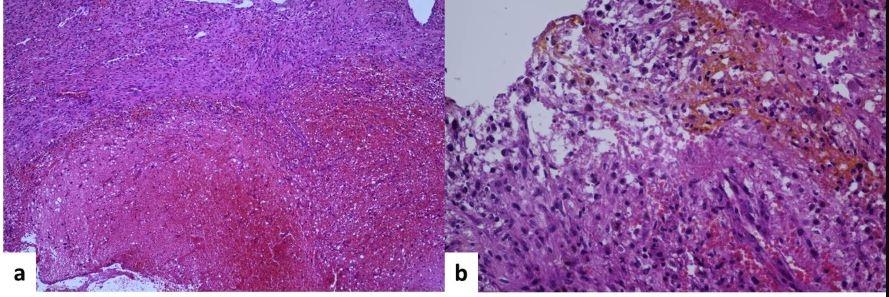 Histopathological exam. A – hematoxylin-eosin stain, 10×. Schwannoma with massive haemorrhage. B – hematoxylin-eosin stain, 40×. Antoni A schwannoma with hemosiderin-containing macrophages (siderophages).