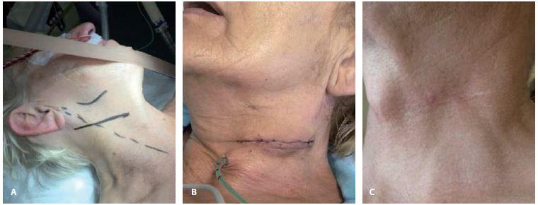 Předoperační (A), perioperační (B) a pooperační (C) obraz při použití příčného kožního řezu u karotické endarterektomie.<br> Fig. 3. Preoperative (A), perioperative (B) and postoperative (C) images of transverse skin incision during carotid endarterectomy.