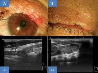 Clinical finding of upper eyelid five years after surgery for MCC on now 53 year old patient (A), spontaneous closure of ocular aperture (B), typical flat benign reactive node in area of musculus sternokleidomastoideus in right eye in our patient (C) and for comparison example of bundle of malignant predominantly almost spherical nodes with clear echogenic stroma (archive of MUDr. J. Zikmund, CSc.) in same region (D)