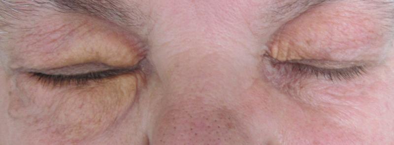 Periokulární xantogranulom