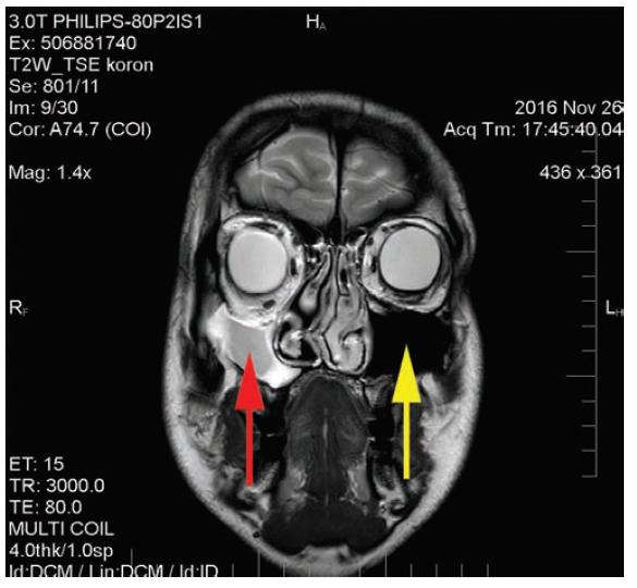 MR vyšetření: zmenšení a zastření pravého maxilárního sinu, normální velikost i vzdušnost levého maxilárního sinu