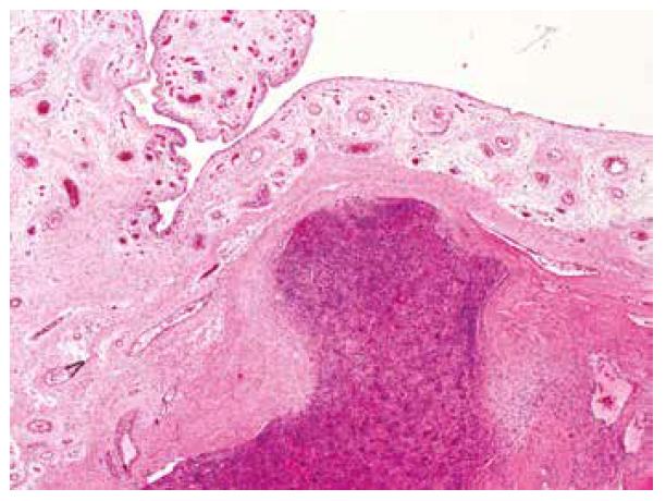 Tumor na několika místech destruoval kompaktní kost a jazykovitě pronikal těsně pod kloubní synovii (HE, 20x).