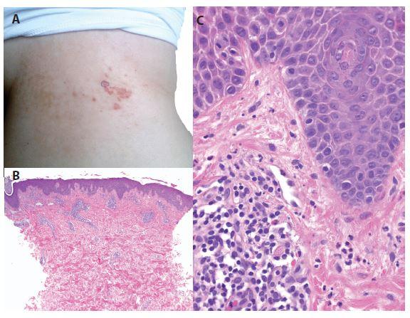 a, b, c. Prurigo pigmentosa<br> a) bioptovaná makulopapula na boku<br> b) perivaskulární dermatitida (HE 40x)<br> c) v epidermis nevýrazná spongióza, ojedinělá lymfocytární exocytóza, v koriu perivaskulární lymfocytární infiltráty s příměsí neutrofilů se známkami fragmentace jader přítomných v lumen cév a pronikajících do papil, ojedinělé eozinofily (HE 400x)