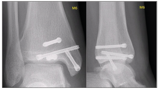 The patient was clinically observed until the growth plates have fully closed, i.e. for the period of further 16 months