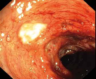 Okrouhlé ulcerace s fibrinem v colon descendens.<br> Fig. 3. Round ulceration with fibrin on the surface in the descending colon.