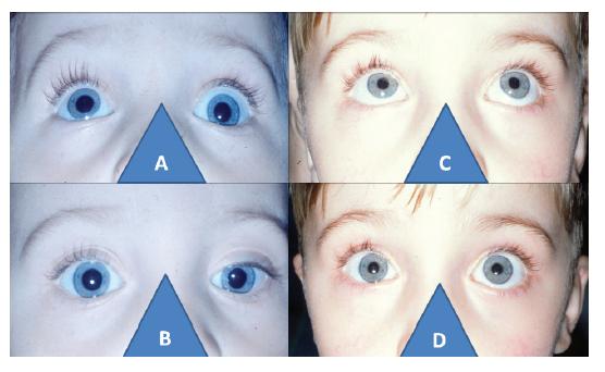 3-letý chlapec s levostrannou párezou elevátorů: porucha elevace vlevo (A) při stejnostranné hypotropií před operaci cul-de-sac (B), a oboustranně volná elevace (C) s paralelním postavení očí po dvou letech od operace (D)